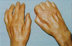 Diabética amiotrofia proximal